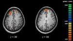 脳のfMRI画像