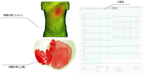 Heart Explorerで心電図を可視化